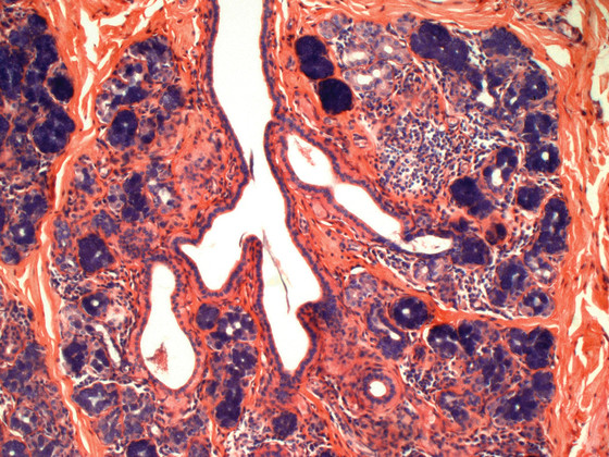 Sweat gland showing an apocrine gland and smaller sebaceous glands.